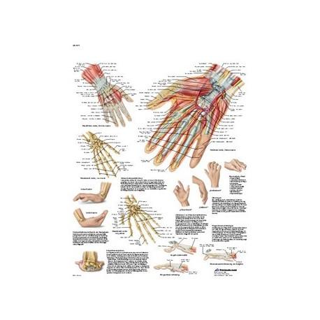 """Lámina """"Mano y articulación radiocarpiana - Anatomía y patología"""