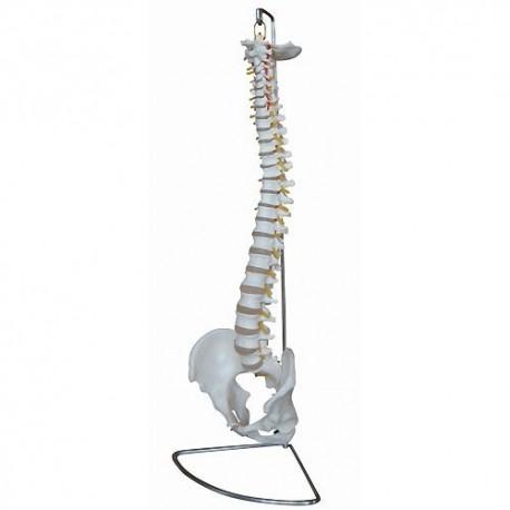 Columna vertebral Didáctica con hernia de disco